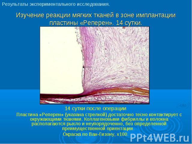 14 сутки после операции 14 сутки после операции Пластина «Реперен» (указана стрелкой) достаточно тесно контактирует с окружающими тканями. Коллагеновыми фибриллы и волокна располагаются рыхло и неупорядоченно, без определенной преимущественной ориен…