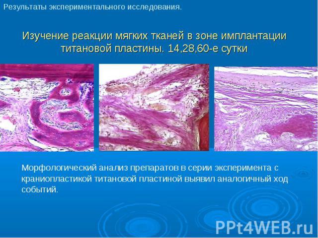 Морфологический анализ препаратов в серии эксперимента с краниопластикой титановой пластиной выявил аналогичный ход событий. Морфологический анализ препаратов в серии эксперимента с краниопластикой титановой пластиной выявил аналогичный ход событий.