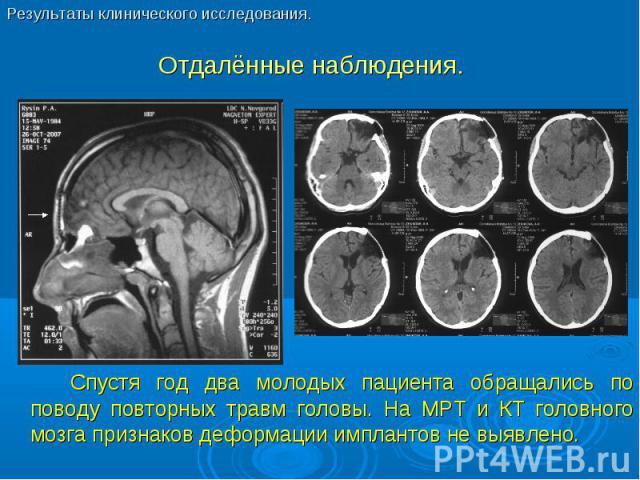 Спустя год два молодых пациента обращались по поводу повторных травм головы. На МРТ и КТ головного мозга признаков деформации имплантов не выявлено. Спустя год два молодых пациента обращались по поводу повторных травм головы. На МРТ и КТ головного м…