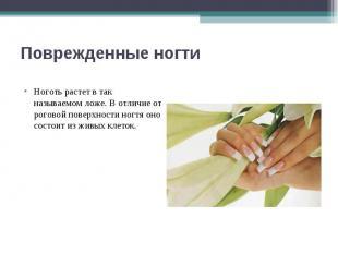 Поврежденные ногти Ноготь растет в так называемом ложе. В отличие от роговой пов