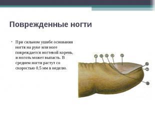 Поврежденные ногти При сильном ушибе основания ногтя на руке или ноге повреждает