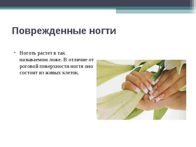 Поврежденные ногти Ноготь растет в так называемом ложе. В отличие от роговой поверхности ногтя оно состоит из живых клеток.