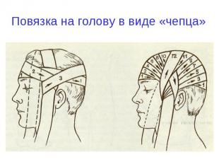 Повязка на голову в виде «чепца»