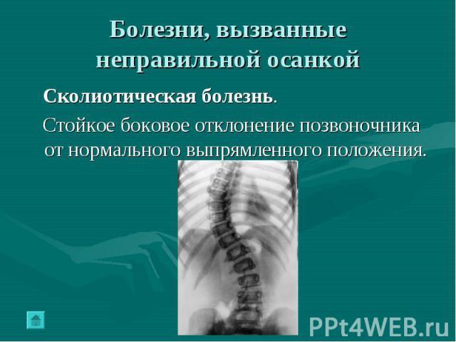 Болезни, вызванные неправильной осанкой Сколиотическая болезнь. Стойкое боковое отклонение позвоночника от нормального выпрямленного положения.