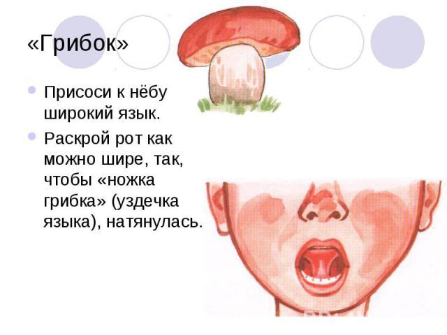 «Грибок»Присоси к нёбу широкий язык. Раскрой рот как можно шире, так, чтобы «ножка грибка» (уздечка языка), натянулась.