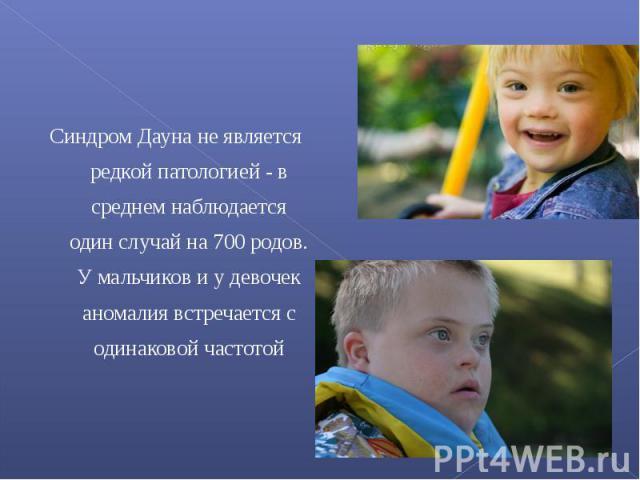 Синдром Дауна не является редкой патологией - в среднем наблюдается один случай на 700 родов. У мальчиков и у девочек аномалия встречается с одинаковой частотой
