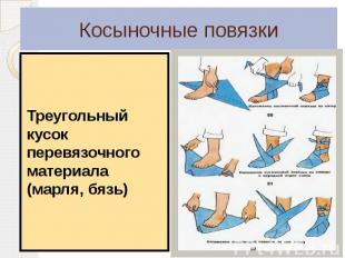 Косыночные повязки Треугольный кусок перевязочного материала (марля, бязь)