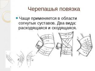 Черепашья повязка Чаще применяется в области согнутых суставов. Два вида: расход