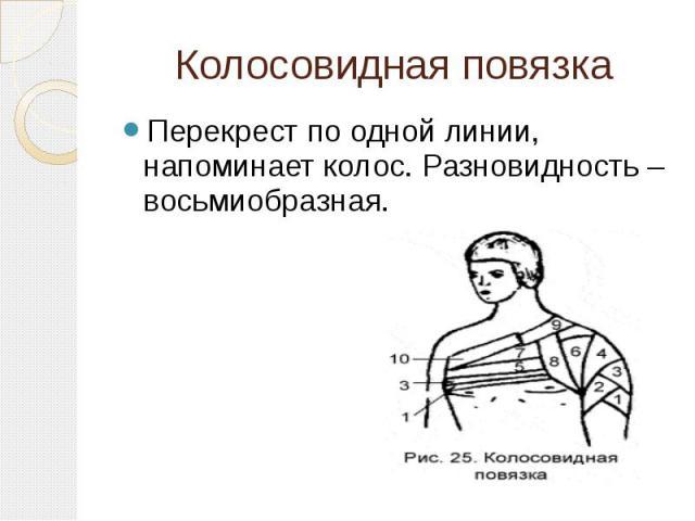 Колосовидная повязка Перекрест по одной линии, напоминает колос. Разновидность – восьмиобразная.