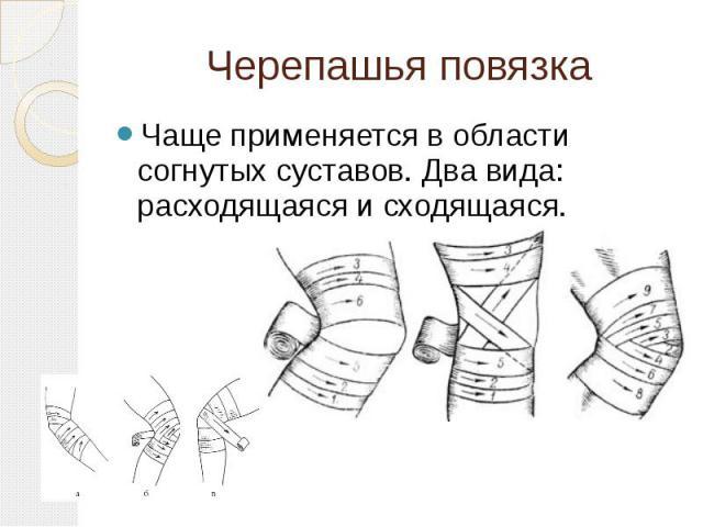 Черепашья повязка Чаще применяется в области согнутых суставов. Два вида: расходящаяся и сходящаяся.