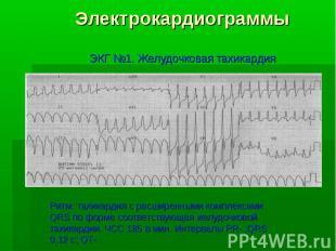 Электрокардиограммы ЭКГ №1. Желудочковая тахикардия Ритм: тахикардия с расширенн