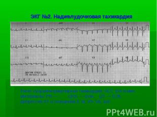 ЭКГ №2. Наджелудочковая тахикардия Ритм: суправентрикулярная тахикардия. ЧСС 155