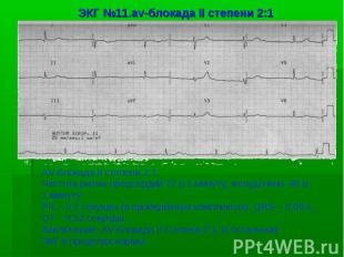 ЭКГ №11.av-блокада II степени 2:1 AV-блокада II степени 2:1. Частота ритма предс