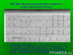 ЭКГ №3. Мерцательная аритмия у пациента с гипертонической болезнью. Мерцание пре