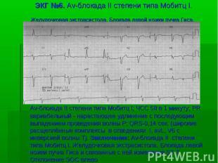 ЭКГ №6. Av-блокада II степени типа Мобитц I. Желудочковая экстрасистола. Блокада