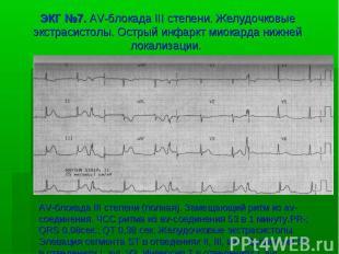 ЭКГ №7. AV-блокада III степени. Желудочковые экстрасистолы. Острый инфаркт миока