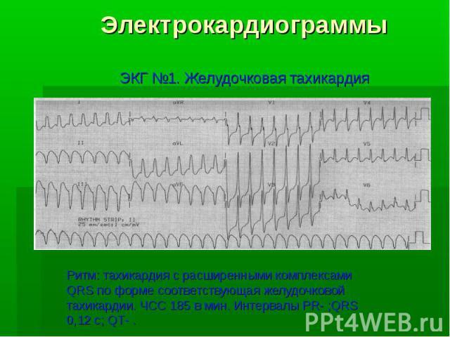Электрокардиограммы ЭКГ №1. Желудочковая тахикардия Ритм: тахикардия с расширенными комплексами QRS по форме соответствующая желудочковой тахикардии. ЧСС 185 в мин. Интервалы PR- ;QRS 0,12 с; QT- .