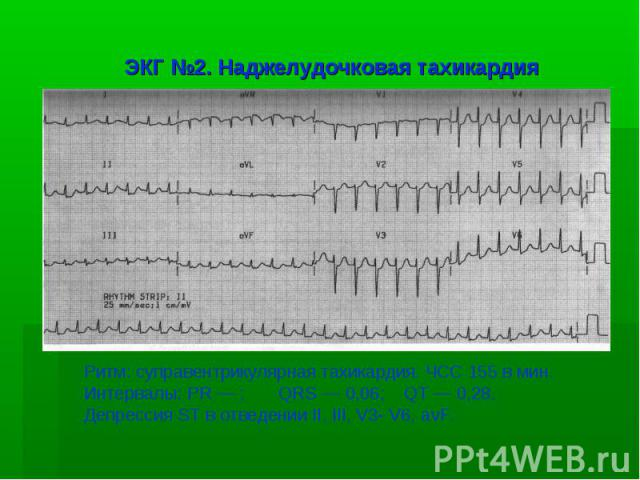 ЭКГ №2. Наджелудочковая тахикардия Ритм: суправентрикулярная тахикардия. ЧСС 155 в мин. Интервалы: PR — ; QRS — 0,06; QT — 0,28. Депрессия ST в отведении II, III, V3- V6, avF.