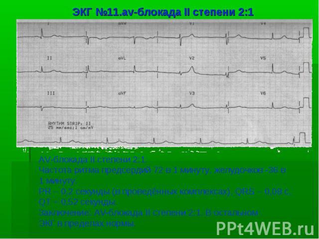 ЭКГ №11.av-блокада II степени 2:1 AV-блокада II степени 2:1. Частота ритма предсердий 72 в 1 минуту, желудочков -36 в 1 минуту. PR – 0,2 секунды (в проведённых комплексах), QRS – 0,08 с, QT – 0,52 секунды. Заключение: AV-блокада II степени 2:1. В ос…