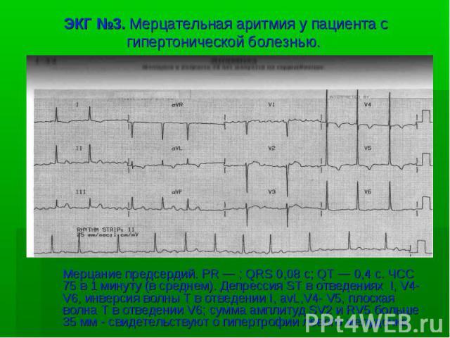 ЭКГ №3. Мерцательная аритмия у пациента с гипертонической болезнью. Мерцание предсердий. PR — ; QRS 0,08 с; QT — 0,4 с. ЧСС 75 в 1 минуту (в среднем). Депрессия ST в отведениях I, V4- V6, инверсия волны Т в отведении I, avL,V4- V5, плоская волна Т в…