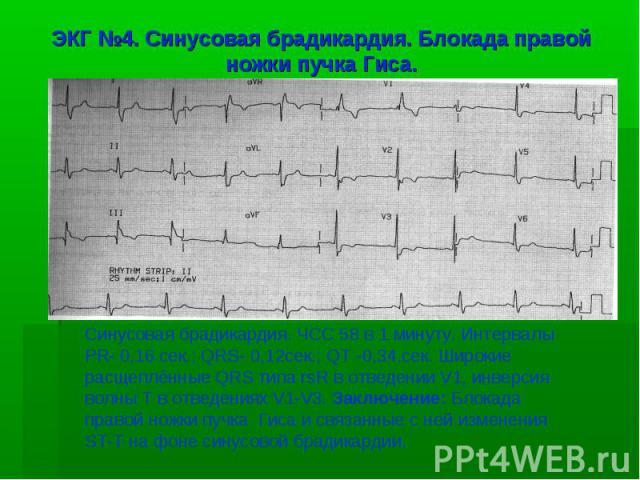 ЭКГ №4. Синусовая брадикардия. Блокада правой ножки пучка Гиса. Синусовая брадикардия. ЧСС 58 в 1 минуту. Интервалы PR- 0,16 сек.; QRS- 0,12сек.; QT -0,34.сек. Широкие расщеплённые QRS типа rsR в отведении V1, инверсия волны T в отведениях V1-V3. За…