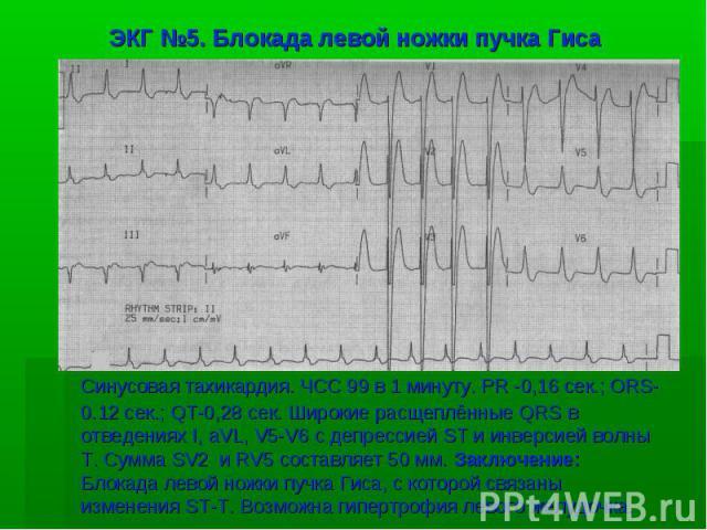 ЭКГ №5. Блокада левой ножки пучка Гиса Синусовая тахикардия. ЧСС 99 в 1 минуту. PR -0,16 сек.; ORS-0.12 сек.; QT-0,28 сек. Широкие расщеплённые QRS в отведениях I, aVL, V5-V6 с депрессией ST и инверсией волны T. Сумма SV2 и RV5 составляет 50 мм. Зак…