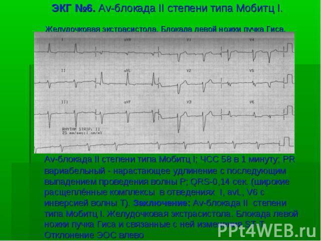 ЭКГ №6. Av-блокада II степени типа Мобитц I. Желудочковая экстрасистола. Блокада левой ножки пучка Гиса. Av-блокада II степени типа Мобитц I; ЧСС 58 в 1 минуту; PR вариабельный - нарастающее удлинение с последующим выпадением проведения волны P; QRS…