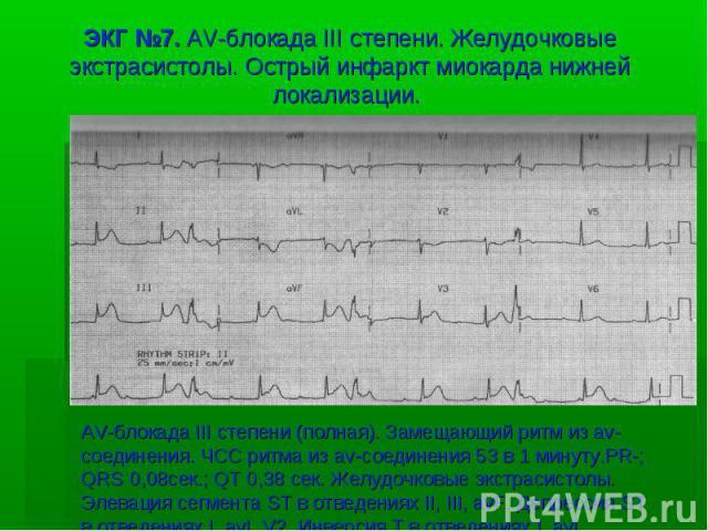 ЭКГ №7. AV-блокада III степени. Желудочковые экстрасистолы. Острый инфаркт миокарда нижней локализации. AV-блокада III степени (полная). Замещающий ритм из av-соединения. ЧСС ритма из av-соединения 53 в 1 минуту.PR-; QRS 0,08сек.; QT 0,38 сек. Желуд…