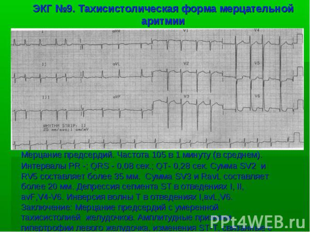 ЭКГ №9. Тахисистолическая форма мерцательной аритмии Мерцание предсердий. Частота 105 в 1 минуту (в среднем). Интервалы PR -; QRS - 0,08 сек.; QT- 0,28 сек. Сумма SV2 и RV5 составляет более 35 мм. Сумма SV3 и RavL составляет более 20 мм. Депрессия с…
