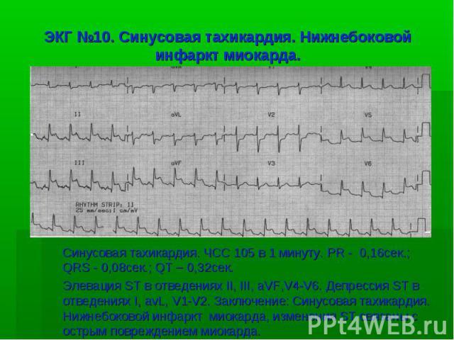 ЭКГ №10. Синусовая тахикардия. Нижнебоковой инфаркт миокарда. Синусовая тахикардия. ЧСС 105 в 1 минуту. PR - 0,16сек.; QRS - 0,08сек.; QT – 0,32сек. Элевация ST в отведениях II, III, aVF,V4-V6. Депрессия ST в отведениях I, avL, V1-V2. Заключение: Си…