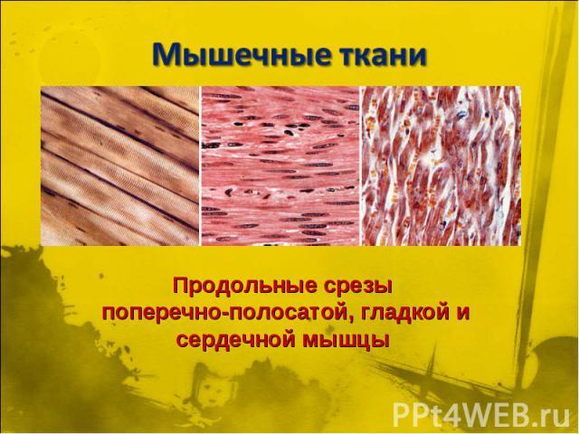 Мышечные ткани Продольные срезы поперечно-полосатой, гладкой и сердечной мышцы