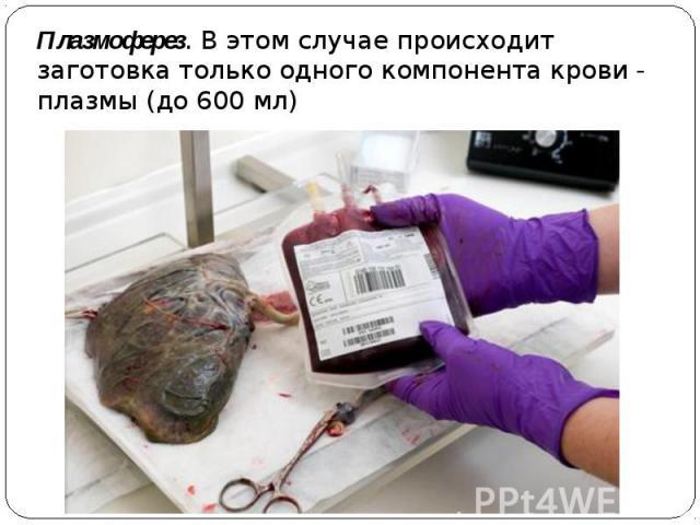 Плазмоферез. В этом случае происходит заготовка только одного компонента крови- плазмы (до 600 мл)