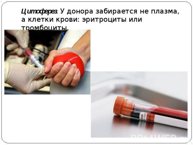 Цитоферез. У донора забирается не плазма, а клетки крови: эритроциты или тромбоциты.