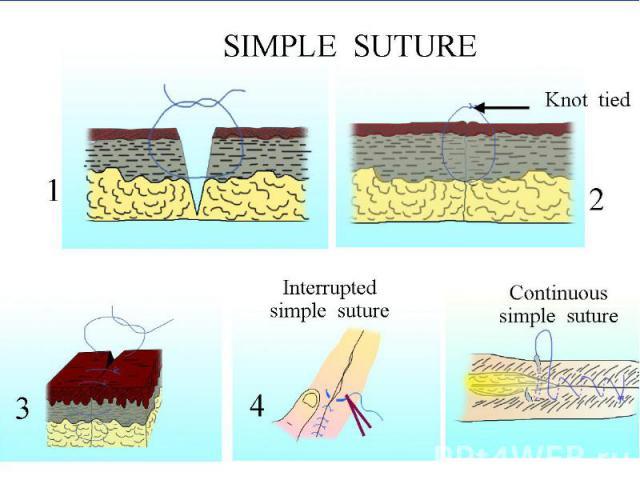 Требования: Требования: Тщательное сопоставление краев раны; Используются режущие иглы; Основание треугольной раны, образуемой иглой должно находиться параллельно линии разреза; Вкол и выкол производятся строго перпендикулярно поверхности кожи; Вкол…