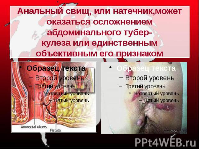 Анальный свищ, или натечник,может оказаться осложнением абдоминального тубер-кулеза или единственным объективным его признаком