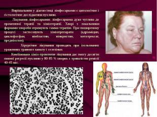 Вирішальним у діагностиці лімфосаркоми є цитологічне і гістологічне дослідження