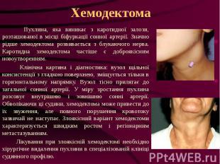 Хемодектома Пухлина, яка виникає з каротидної залози, розташованої в місці біфур