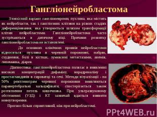 Гангліонейробластома Злоякісний варіант гангліоневроми, пухлина, яка містить як