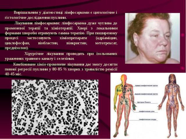 Вирішальним у діагностиці лімфосаркоми є цитологічне і гістологічне дослідження пухлини. Вирішальним у діагностиці лімфосаркоми є цитологічне і гістологічне дослідження пухлини. Лікування лімфосаркоми: лімфосаркома дуже чутлива до променевої терапії…