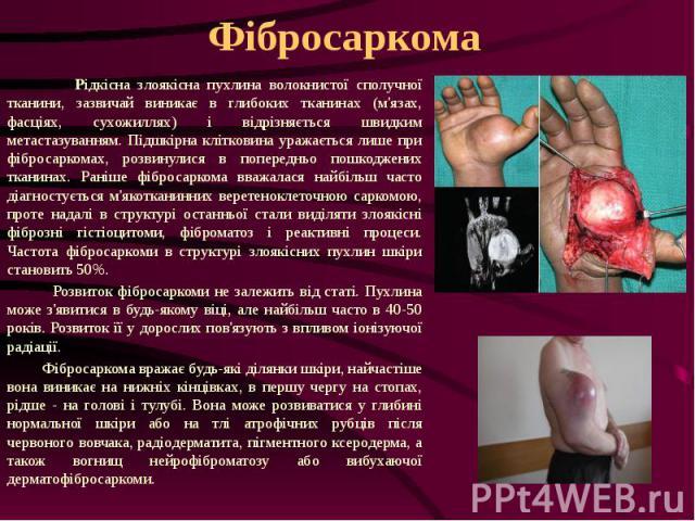 Фібросаркома Рідкісна злоякісна пухлина волокнистої сполучної тканини, зазвичай виникає в глибоких тканинах (м'язах, фасціях, сухожиллях) і відрізняється швидким метастазуванням. Підшкірна клітковина уражається лише при фібросаркомах, розвинулися в …
