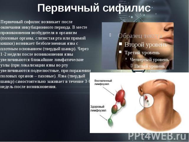 Первичный сифилис Первичный сифилис возникает после окончания инкубационного периода. В месте проникновения возбудителя в организм (половые органы, слизистая рта или прямой кишки) возникает безболезненная язва с плотным основанием (твердый шанкр). Ч…