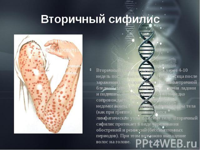 Вторичный сифилис Вторичный сифилис начинается через 4-10 недель после появления язвы (2-4 месяца после заражения). Он характеризуется симметричной бледной сыпью по всему телу, включая ладони и подошвы. Возникновение сыпи нередко сопровождается голо…