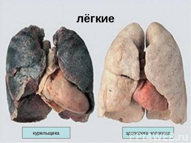 лёгкие курильщиказдорового человека