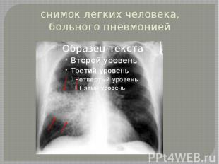 снимок легких человека, больного пневмонией