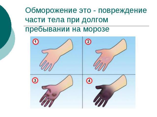 Обморожение это - повреждение части тела при долгом пребывании на морозе