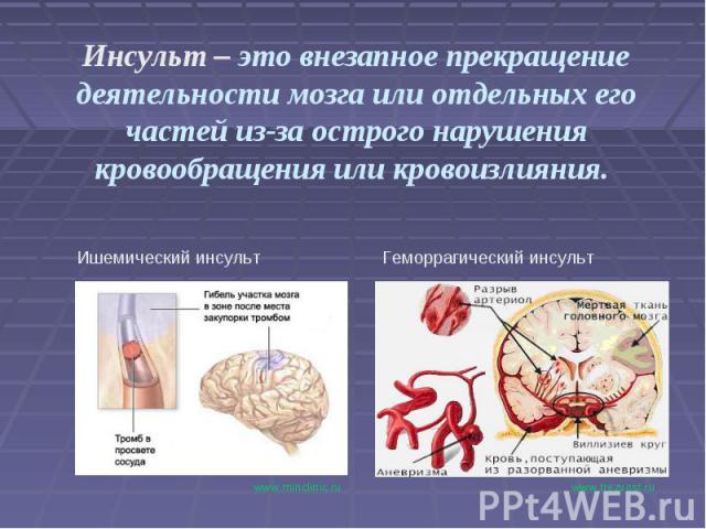 Инсульт – это внезапное прекращение деятельности мозга или отдельных его частей из-за острого нарушения кровообращения или кровоизлияния. Ишемический инсультГеморрагический инсульт