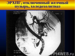 ЭРХПГ, отключенный желчный пузырь, холедохолитиаз
