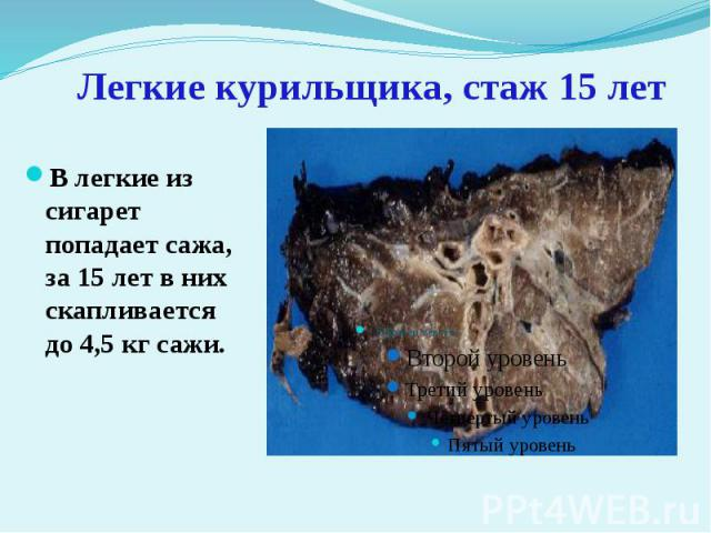 Легкие курильщика, стаж 15 лет В легкие из сигарет попадает сажа, за 15 лет в них скапливается до 4,5 кг сажи.