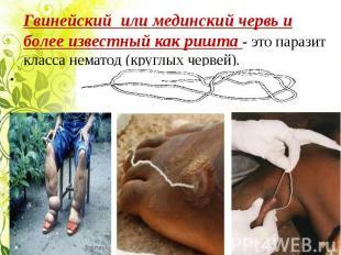 Гвинейский или мединский червь и более известный как ришта - это паразит класса