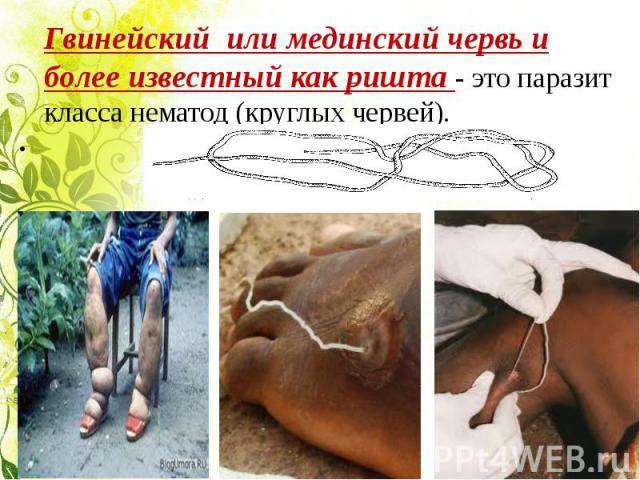 Гвинейский или мединский червь и более известный как ришта - это паразит класса нематод (круглых червей).